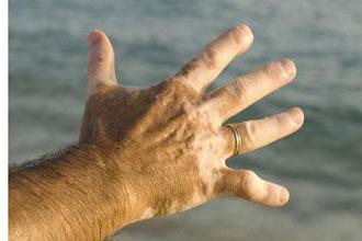 手部白癜风发病原因都有哪些?