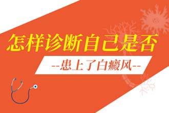 脸上白癜风图片 郑州西京