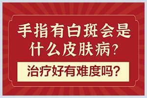 求解答:郑州西京白癜风医院是三甲医院吗