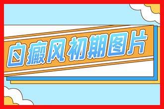 郑州西京费用便宜是不是真的-医院大不大-治疗白癜风有名气吗