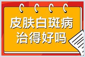 郑州西京白斑医院有值班电话吗-治疗费用要多少