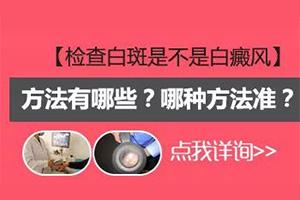 郑州哪家医院有伍德灯可以检查白癜风