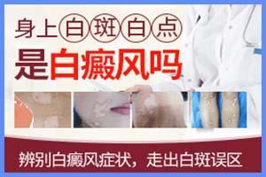 郑州西京医院正规吗-收费高吗-治好要花多少钱