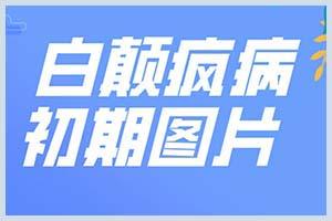 郑州西京医院看病怎么样-白巅风(白斑)收费标准-电话号码