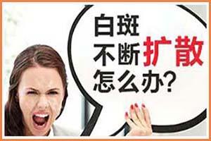 白癞风怎么治疗才能好-郑州西京能治得好吗