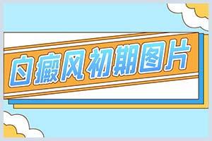 郑州西京医院全国排名第几甲-微信挂号须知
