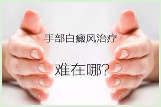 中医诊断白癞风由身体什么原因造成的